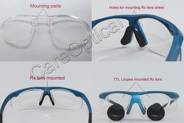 TTL dental loupes surgical loupes 2.5X with Rx lens