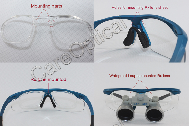 waterproof dental surgical loupes 3.0x with RX lens